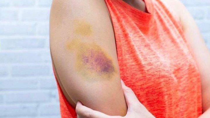 Почему появляются синяки на теле и когда стоит бить тревогу