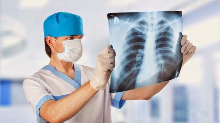 В Приднестровье растет число больных туберкулезом