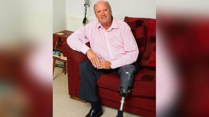Британец натер ногу новыми сандалиями и лишился ноги