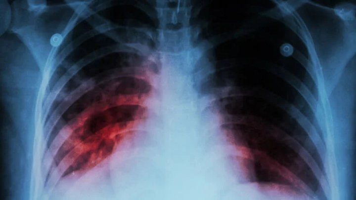 Подтверждён третий случай заболевания легочной чумой в Китае