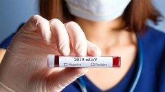 коронавирус, анализ, тест, фото-символ,adonis.com.ua