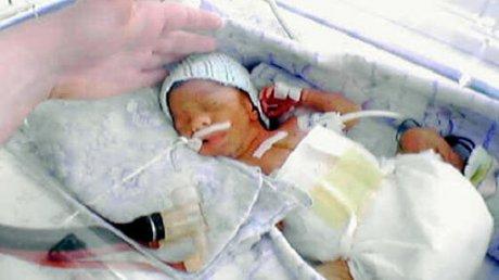 """""""Я испугалась, когда ее увидела"""": мама недоношенной дочурки рассказала о своих ощущениях после родов"""